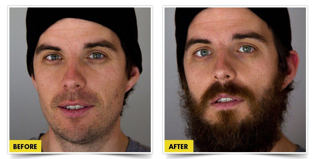 beard czar before and after pictures