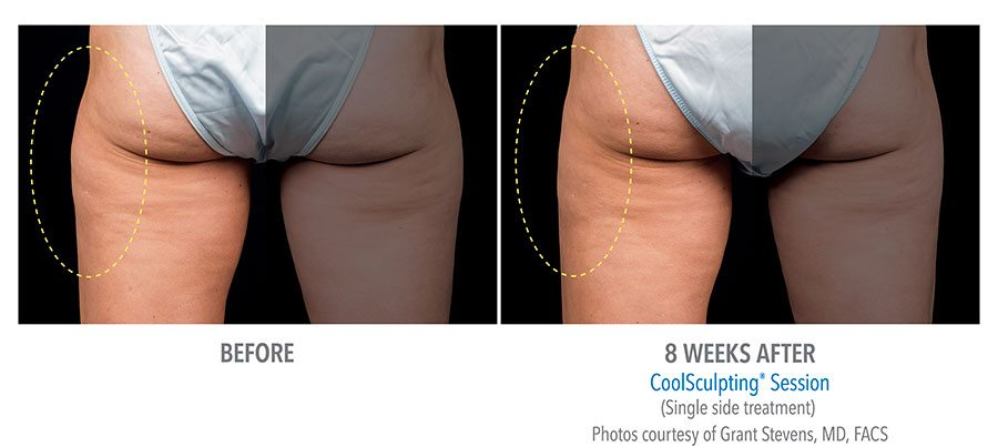 CoolSculpting before and after picture