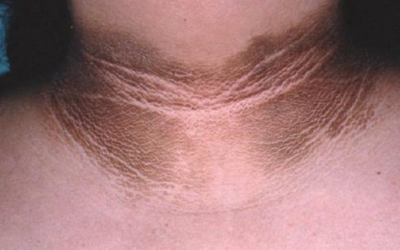 Get Rid Of Black Neck