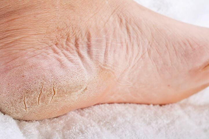 does FootMedix work