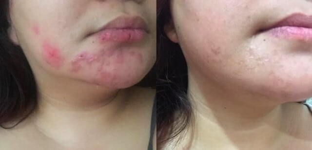 Bio Oil before after photos