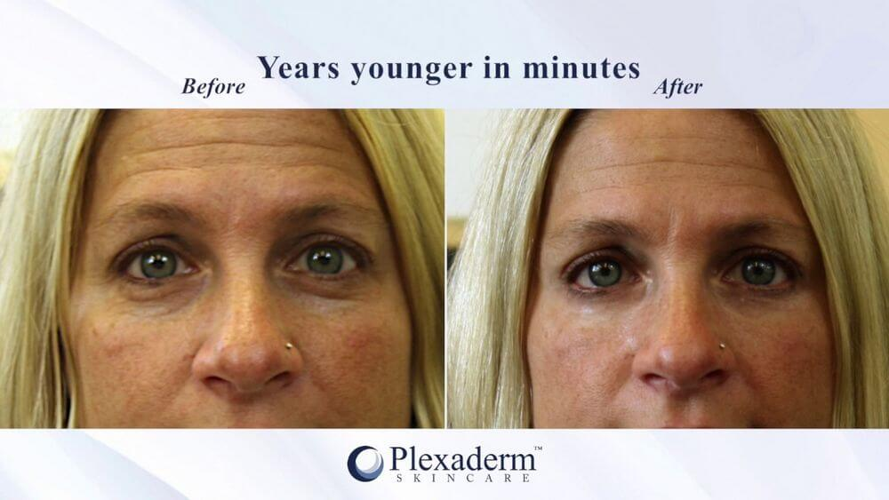 plexaderm before after photos