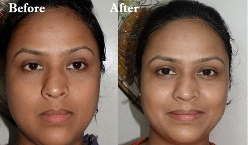 meladerm before and after photos