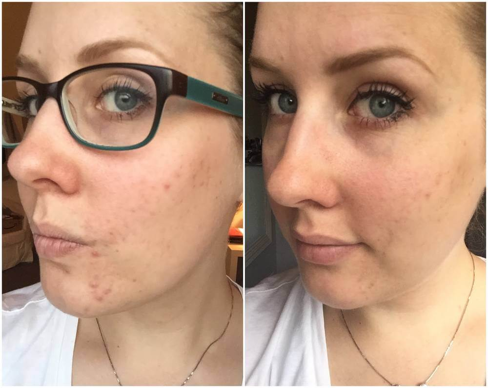 Paula's Choice Clear Regular Strength before after photo