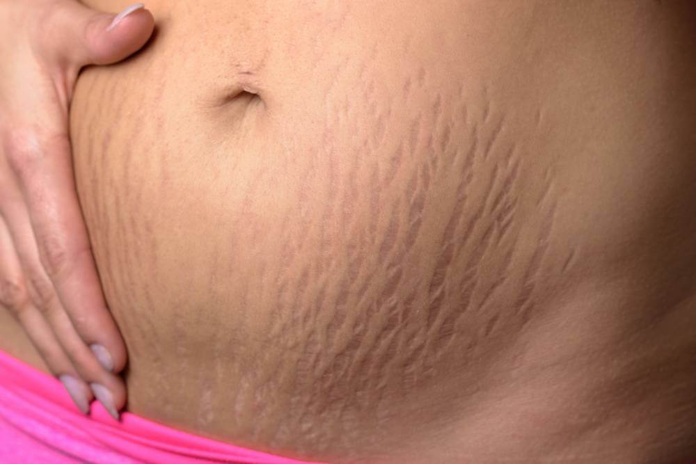 Mederma Stretch Marks treatment