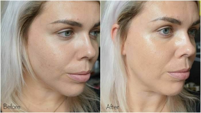 dermalogica before after pic