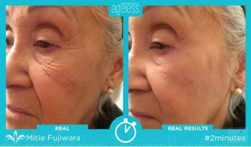 instantly ageless before and after pic