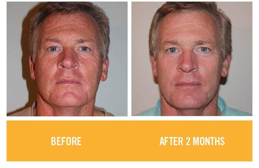 rodan and fields before after pic